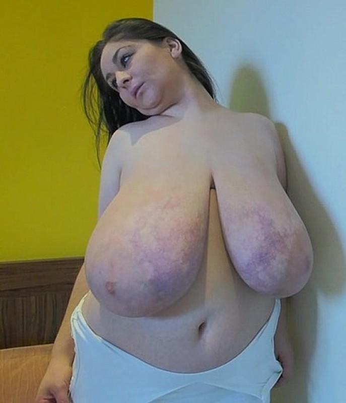 Alice 85JJ - Gigantomastia Breasts